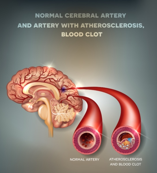 Artery with atherosclerosis, blood clot